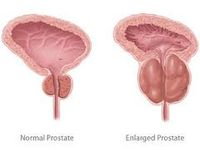 prostatic-hypertrophy